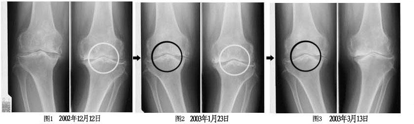 置換 術 人工 骨頭 股関節